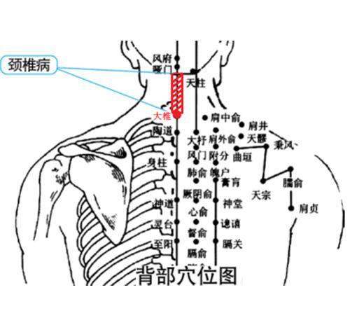 颈椎病理疗仪