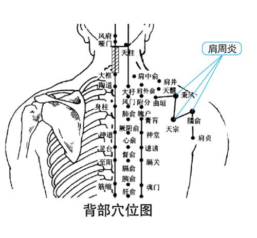 肩周炎理疗仪