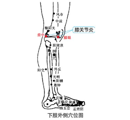 膝关节炎理疗仪