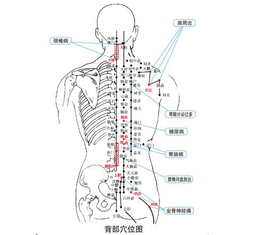 腰椎病理疗仪