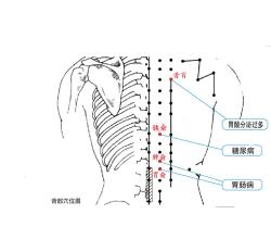 慢性肠炎理疗仪