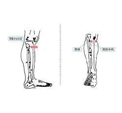 胃十二指肠溃疡理疗仪