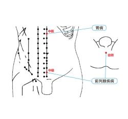 前列腺理疗仪