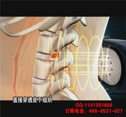 骨刺、骨质增生理疗仪
